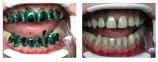 SABLE SEEK индикатор кариеса, зеленого цвета, шприц 1,2 мл. 0